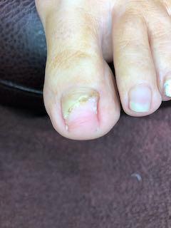 broken-nails-medical