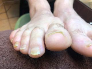 medical-fixed-nails