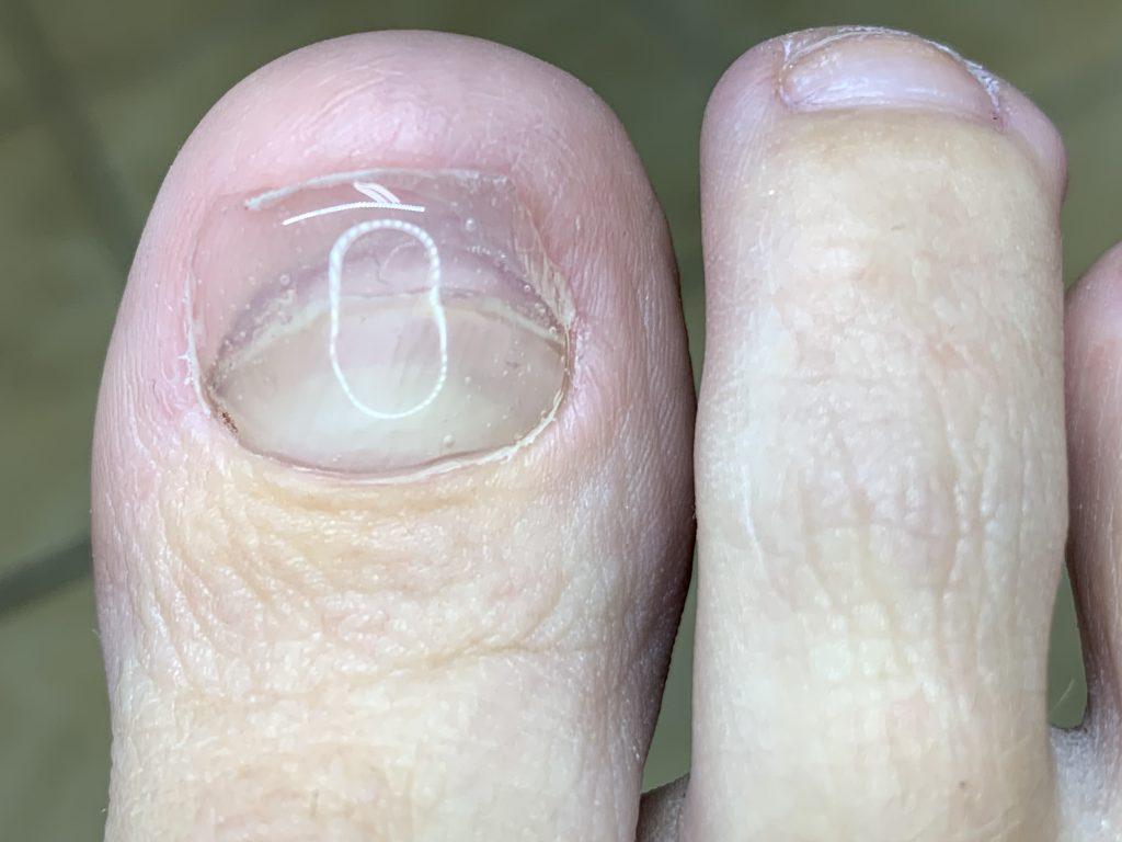 medical-pedicure-fixed-nails