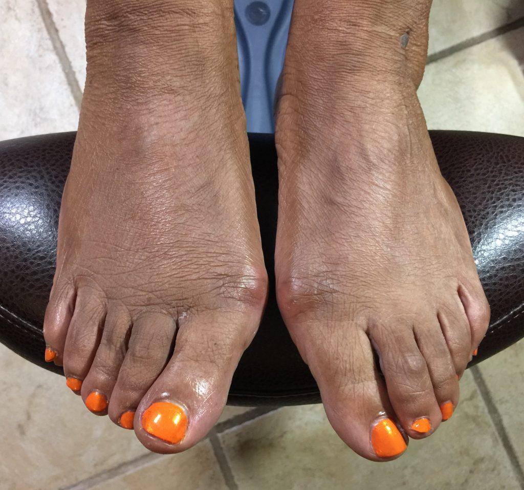 orange-toes-pedicure